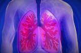 Sử dụng thiết bị di động vào quá trình điều trị bệnh ung thư phổi
