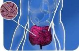 Trị béo phì từ... vi khuẩn ruột