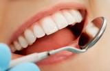 Trám răng có được chi trả bảo hiểm y tế?