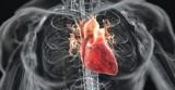 Bệnh tim mạch tại Việt Nam có xu hướng tăng nhanh