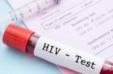 Thử nghiệm thành công giai đoạn đầu vắcxin mới phòng HIV/AIDS