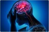 COVID-19 có thể kéo theo một làn sóng bệnh nhân gặp rối loạn tâm thần