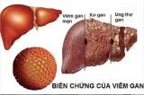 Thuốc điều trị bệnh viêm gan B