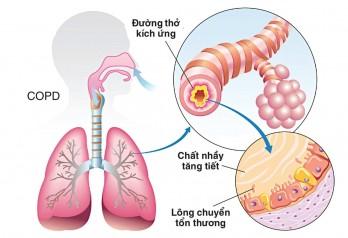 4 dấu hiệu cảnh báo sớm của COPD